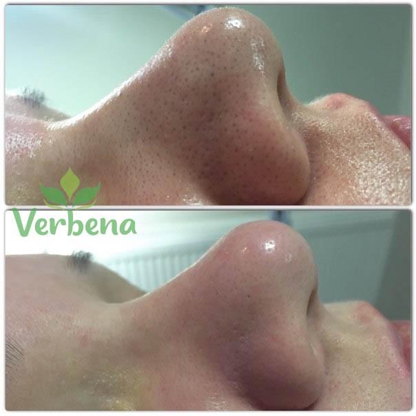 После процедуры «Чистка лица» Фотография До и После